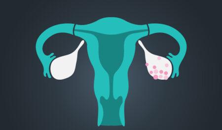 Sup'Biotech Innovation Project (SBIP) - FastCa: une solution innovante pour détecter le cancer ovarien